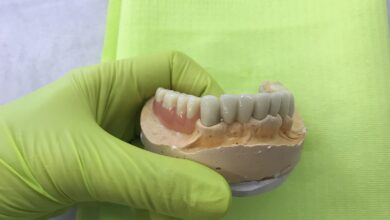 Photo of Zubne proteze – pouzdano i povoljno rešenje za osmeh i zdravlje DENTAL SPA CENTAR