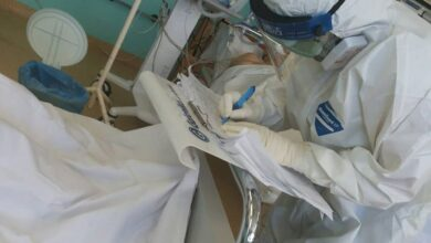 Photo of Virusom korona zaraženo još 67 osoba, preminula još dva pacijenta