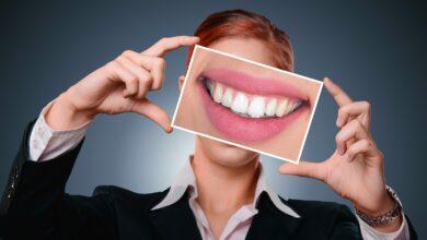 Photo of Estetske zubne nadoknade – Svetske standarde u Niš donosi DENTAL SPA