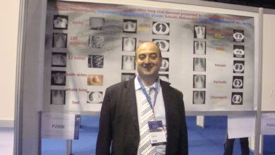 Photo of Dr Aleksandar Ivković, radiolog: Kovid-19 je bolest koja traži način da se uvuče tamo gde će sigurno ubiti