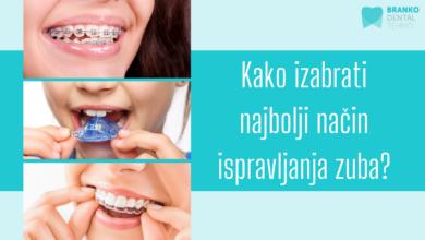 Photo of Kako izabrati najbolji način ispravljanja zuba?