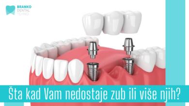 Photo of Šta kada Vam nedostaje zub ili više njih?